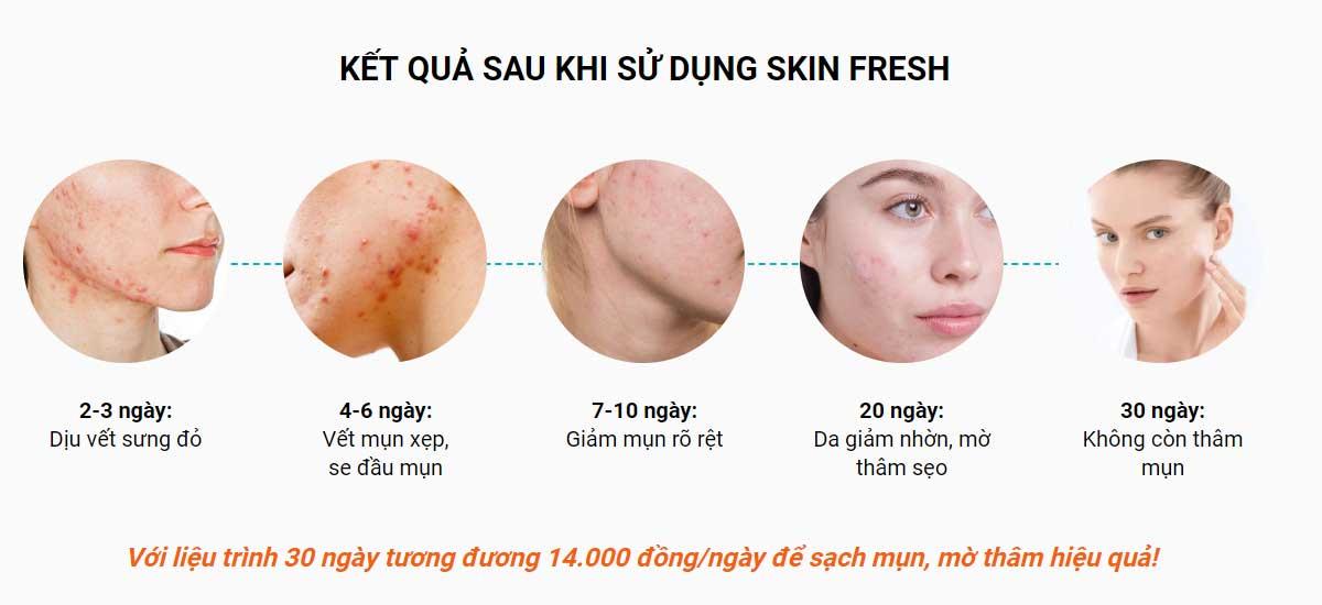 hiệu quả sau 30 ngày dùng skin fresh
