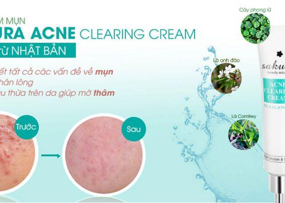 kem trị mụn sakura acne clearing cream