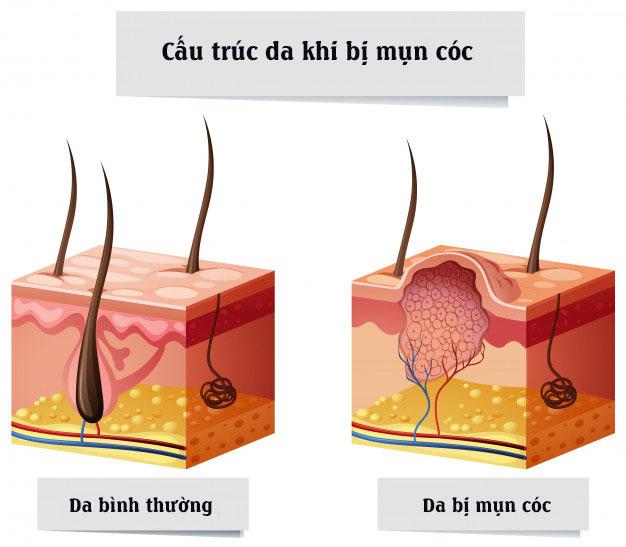 cơ chế hình thành và cấu trúc da khi bị mụn cóc