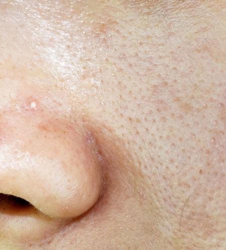 Lỗ chân lông to khiến da tiết dầu nhiều