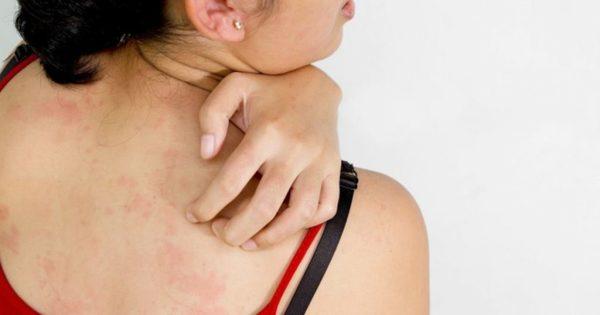 Dị ứng mỹ phẩm gây nên tình trạng mụn ở lưng