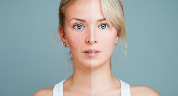Kem dưỡng trắng da là gì