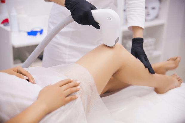 Dùng liệu pháp laser trị rạn da