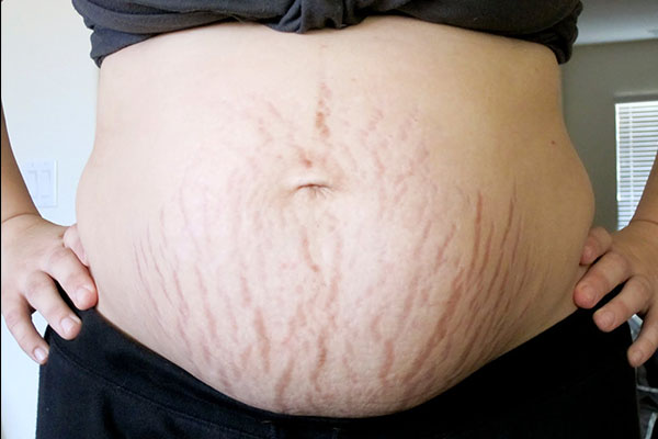 Vết rạn da sau khi sinh con