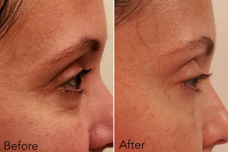 Trước và sau khi sử dụng kem dưỡng mắt