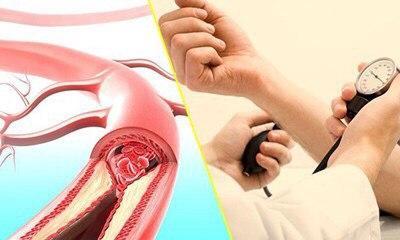 Vitamin C giảm nguy cơ mắc bệnh huyết áp