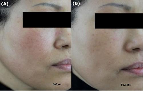 Kết quả điều trị nám với SkinMD Pure Whitenol sau 8 tuần