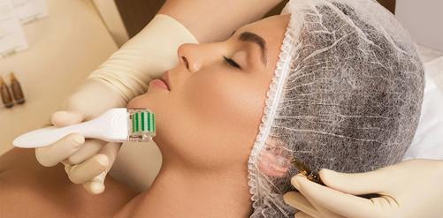 Lăn kim giúp thúc đẩy quá trình tái tạo da