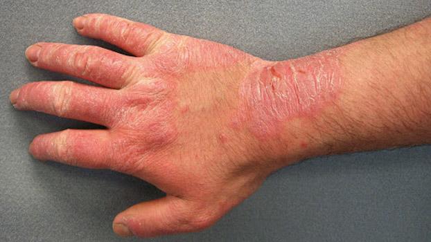 Các loại viêm da cơ địa thường gặp