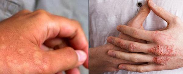 Sự khác biệt giữa viêm da cơ địa và mề đay