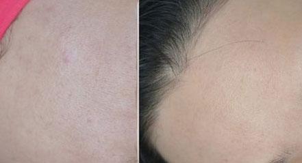 Hiệu quả sau khi dùng serum The Ordinary Niacinamide 10% + ZinC 1%